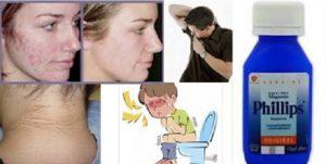 Leite de magnesia