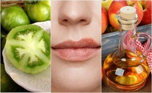 Tratamentos naturais