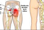 nervo-ciatico-1
